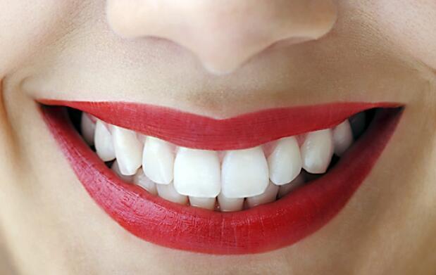 Blanqueamiento dental por LED y más