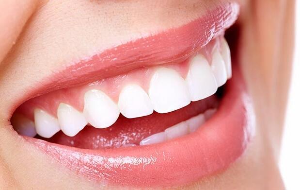 Blanqueamiento dental en sólo 1 sesión