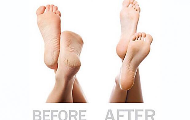 Cuida tus pies con Pedi Pro
