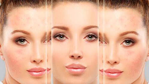 Tratamiento facial + mesoterapia virtual + tratamiento mask led