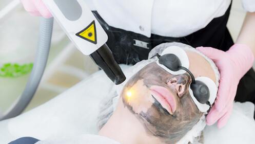 Rejuvenicimiento facial láser con carbón activado