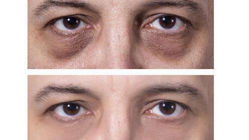 Rejuvenece de manera eficaz el contorno de tus ojos