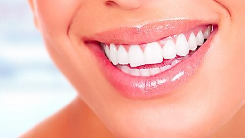 Limpieza y/o blanqueamiento dental